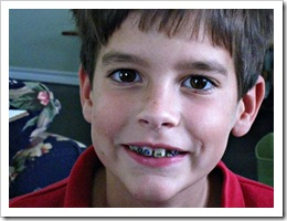 After the braces are on