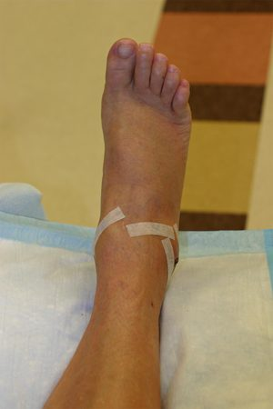 Img_5622ankle